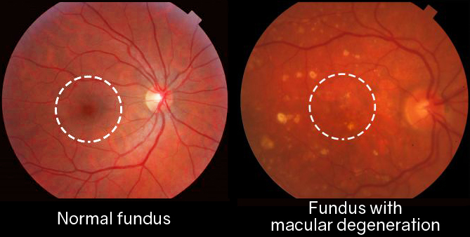 What-Is-Macular-Degeneration-1024x576 copy